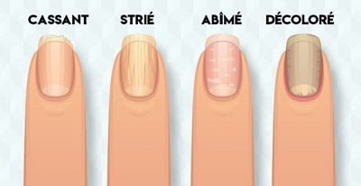 differents ongles