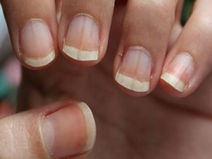 ongles stries