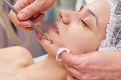 dermatologue-comedons