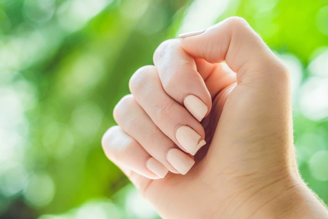 Ongles fragiles : causes, traitement, solutions naturelles