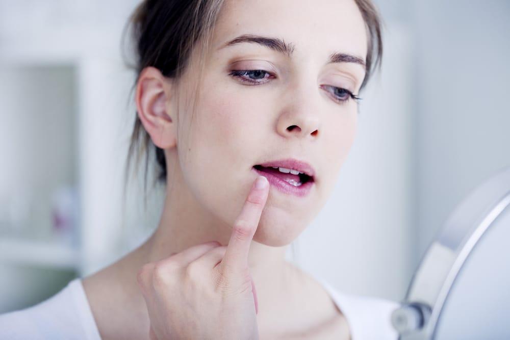 6-remède-contre-les-lèvres-gercées