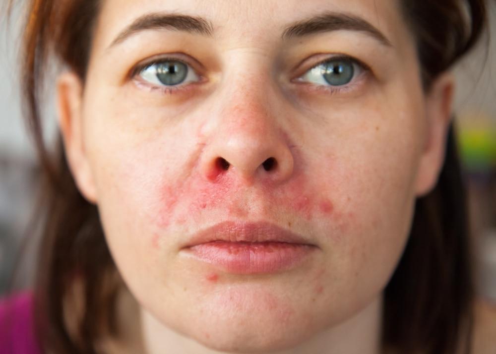 soigner dermatites