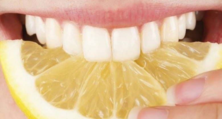citron dents blanches