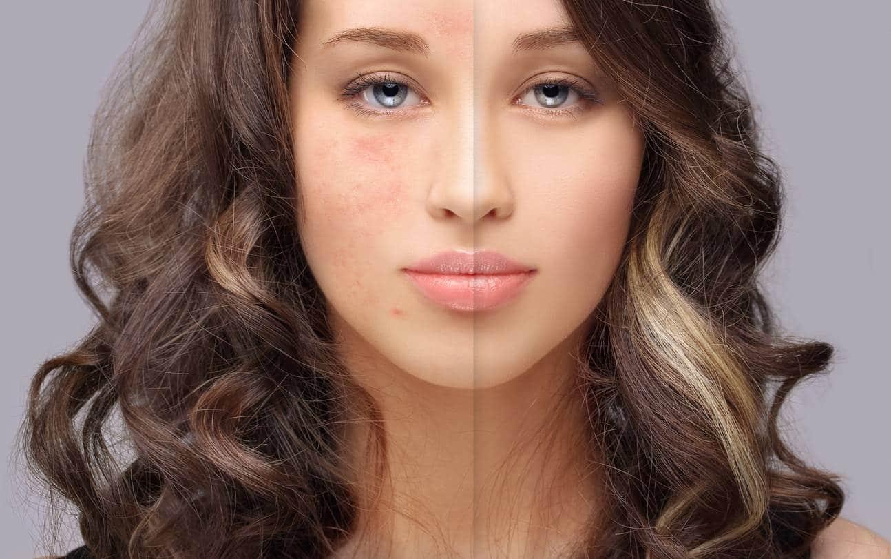 Acide salicylique : lutter efficacement contre l'acné et les imperfections